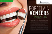 Porcelain Veneers – Without A Drill