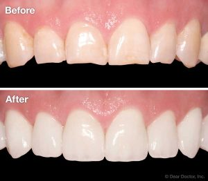 Versatility of Veneers - Before and After